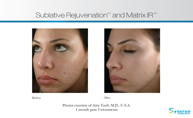 Facial Rejuvenation in Pittsburgh