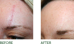 Non-Surgical Facelift Pittsburgh