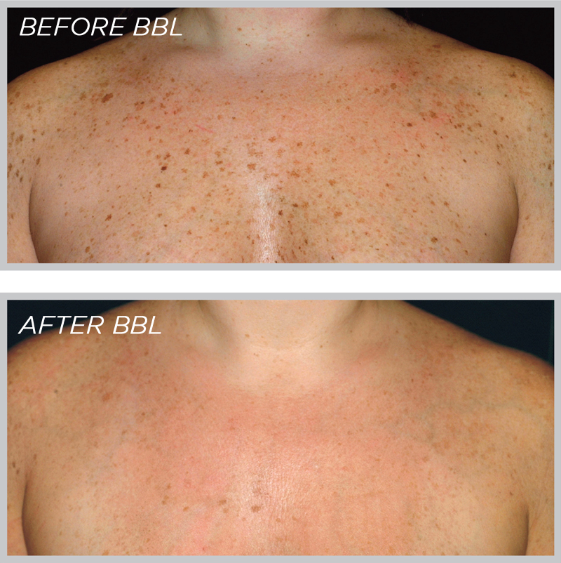 Before-After-BBL