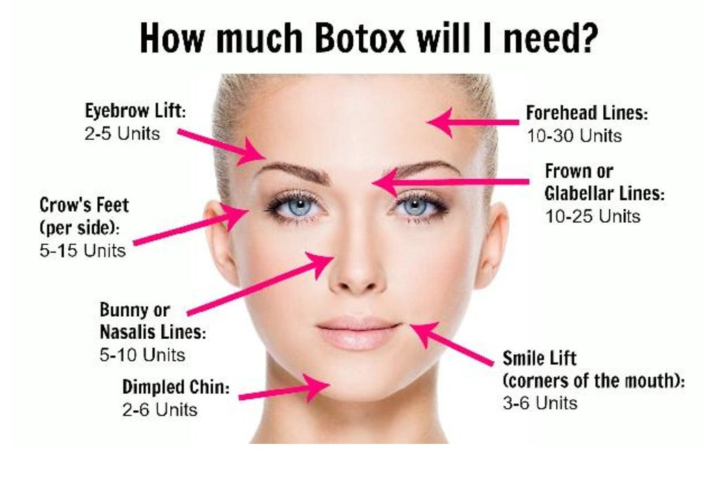 how much botox will i need-page-001